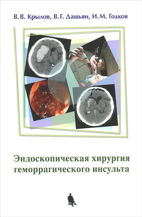 В. В. Крылов, В. Г. Дашьян, И. М. Годков Эндоскопическая хирургия геморрагического инсульта в в крылов в г дашьян с а буров с с петриков хирургия геморрагического инсульта