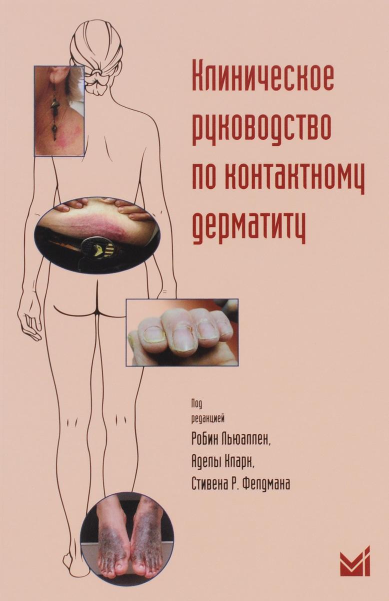Клиническое руководство по контактному дерматиту. Диагностика и лечение в зависимости от области поражения цены онлайн