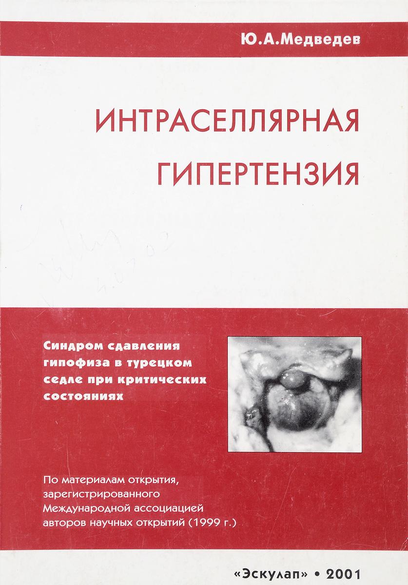 Интраселлярная гипертензия (синдром сдавливания гипофиза в турецком седле при критических состояниях)