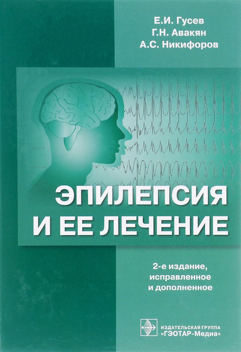 Е. И. Гусев, Г. Н. Авакян, А. С. Никифоров Эпилепсия и ее лечение