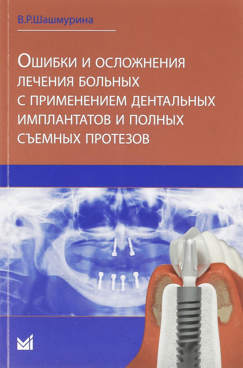 В. Р. Шашмурина Ошибки и осложнения лечения больных с применением дентальных имплантов и полных съемных протезов недорого