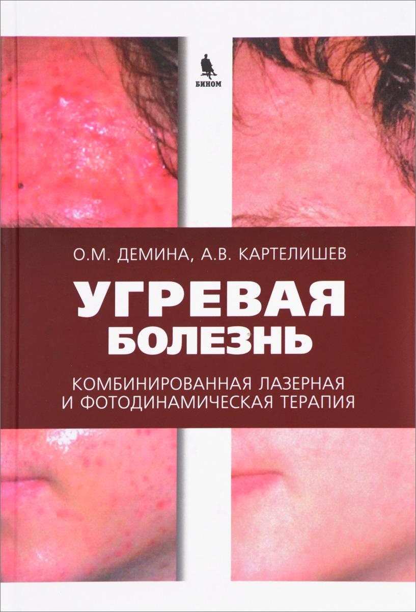О. М. Демина, А. В. Картелишев Угревая болезнь. Комбинированная лазерная и фотодинамическая терапия. Руководство для врачей