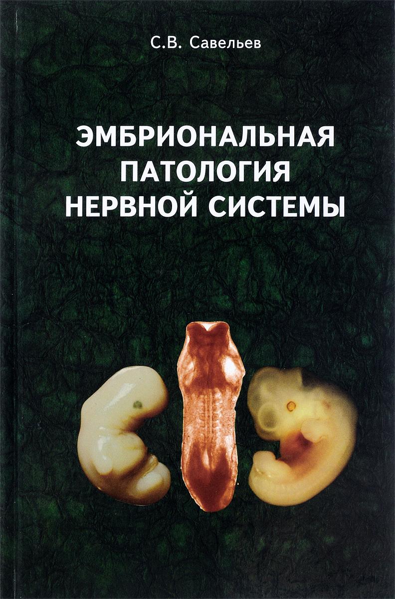 Эмбриональная патология нервной системы | Савельев Сергей Вячеславович