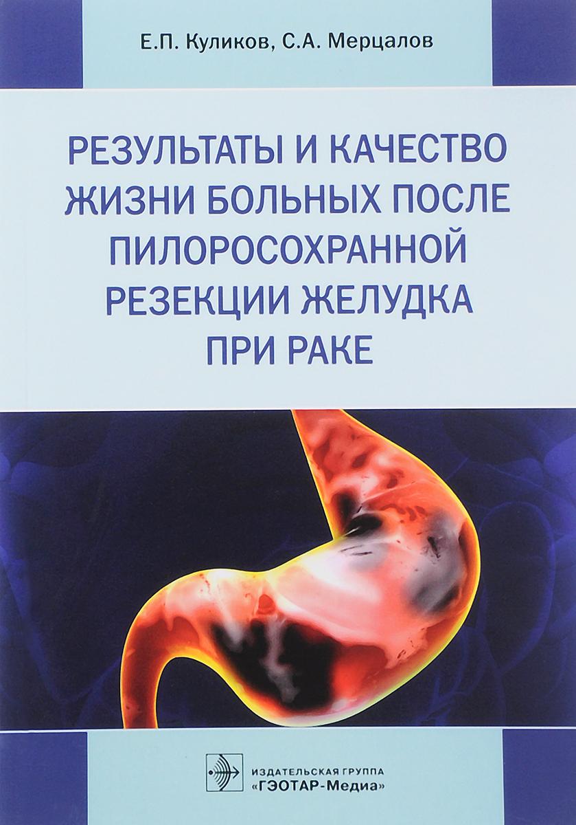 С. А. Мерцалов, Е.П. Куликов Результаты и качество жизни больных после пилоросохранной резекции желудка