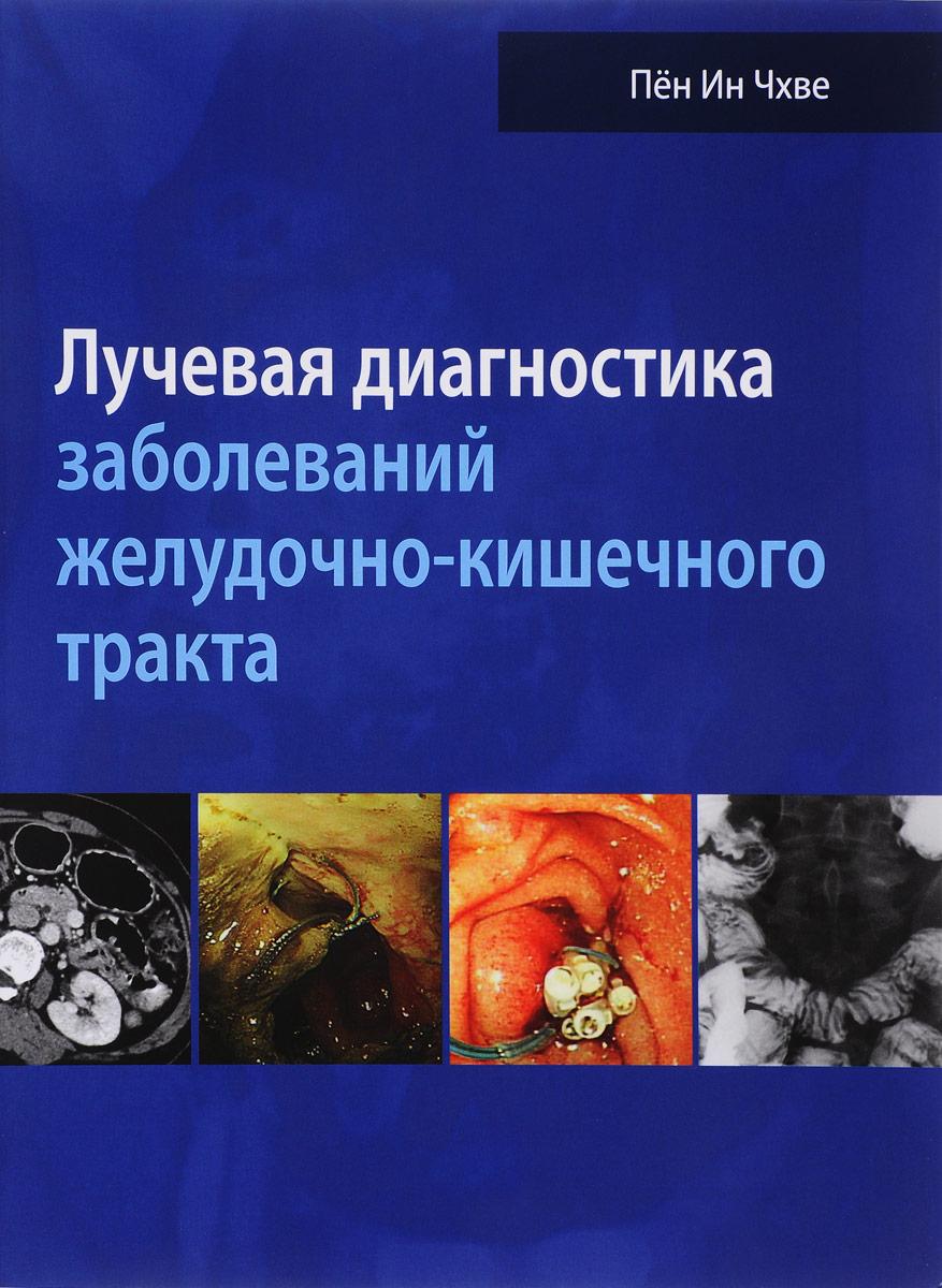 Лучевая диагностика заболеваний желудочно-кишечного тракта пён ин чхве лучевая диагностика заболеваний желудочно кишечного тракта isbn 978 5 91839 095 5