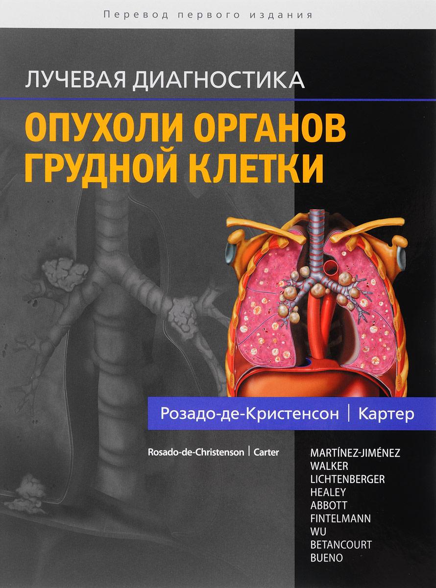 Розадо-де-Кристенсон, Картер Лучевая диагностика. Опухоли органов грудной клетки