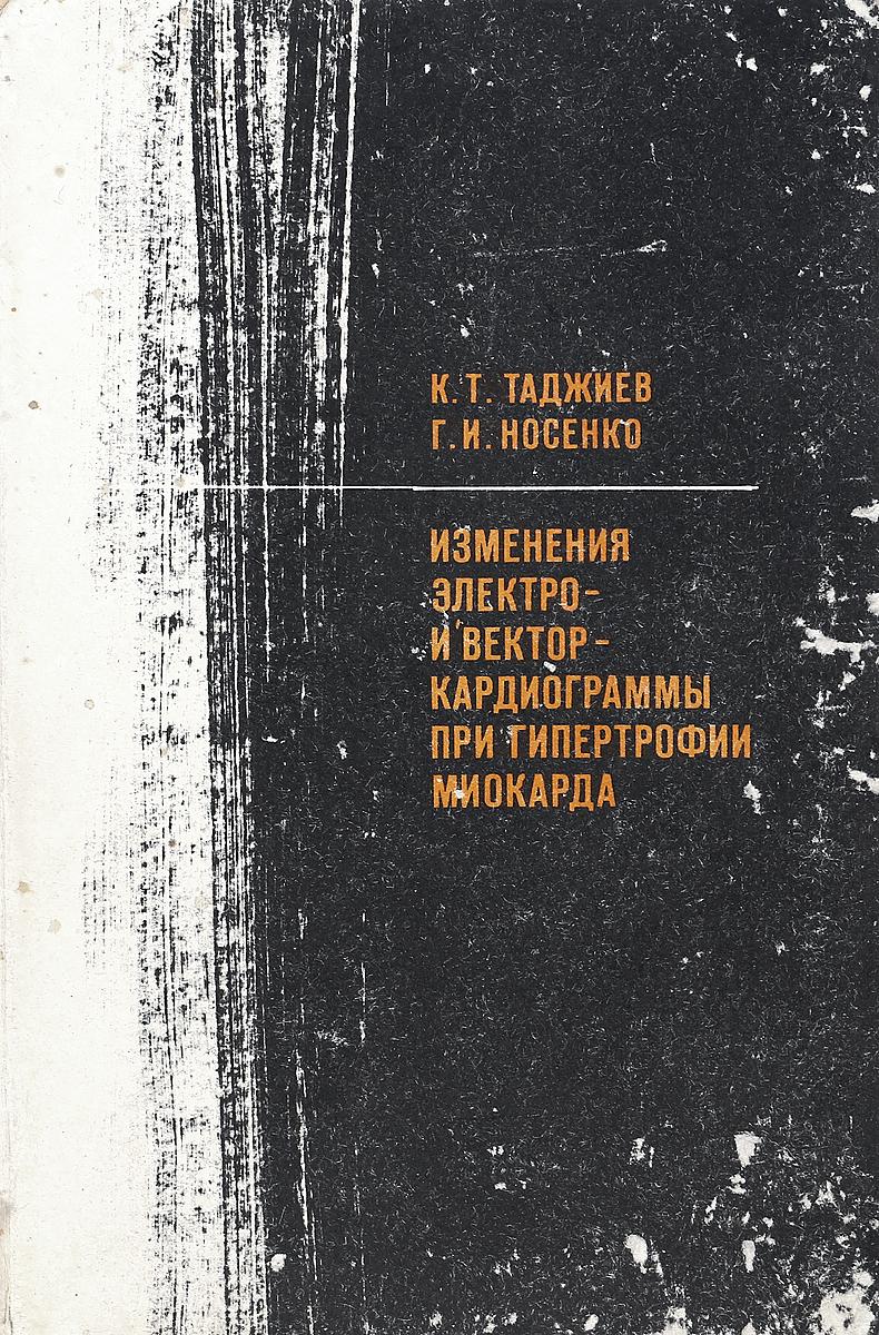 К. Т. Таджиев, Г. И. Носенко Изменения электро- и векторкардиограммы при гипертрофии миокарда