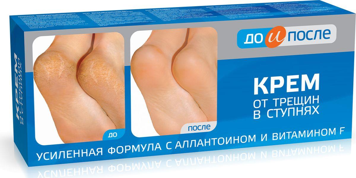 До и После Крем для ног от трещин в ступнях, 50 мл до и после крем для ног от трещин в ступнях 150мл