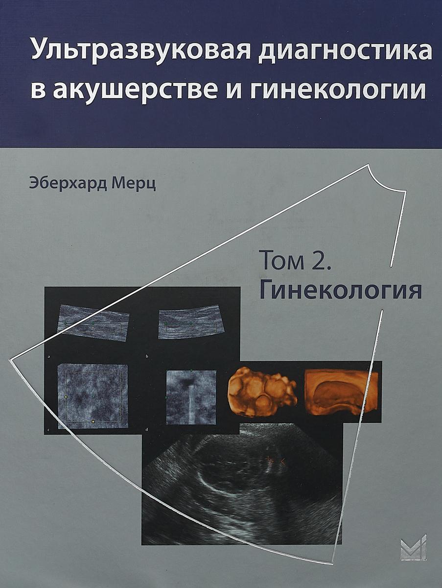 Эберхард Мерц Ультразвуковая диагностика в акушерстве и гинекологии. Том 2. Гинекология
