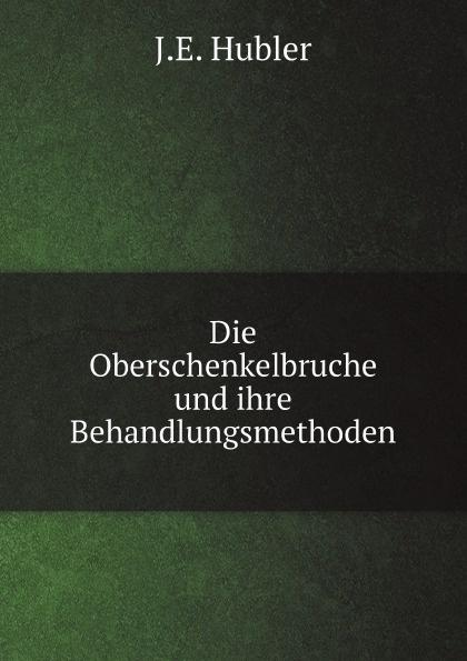 J.E. Hubler Die Oberschenkelbruche und ihre Behandlungsmethoden