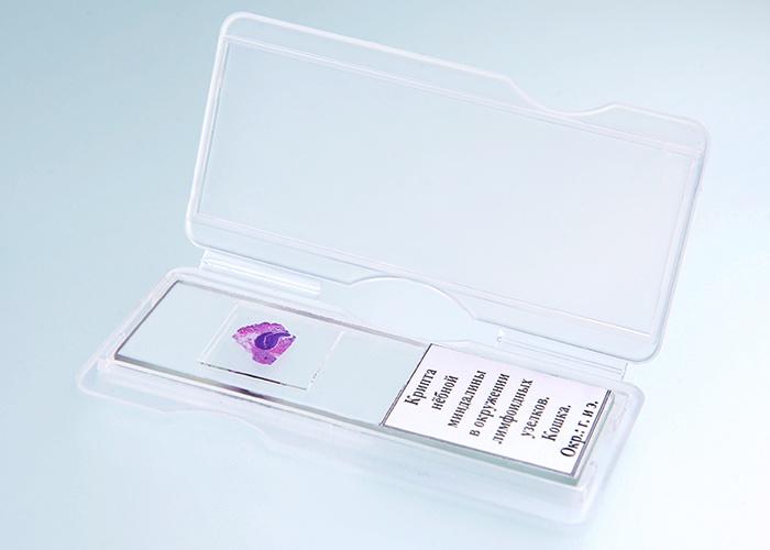 Стекло предметное АО Ретиноиды Простата собаки.  Окр. :  г. и э.  Микропрепарат АО Ретиноиды
