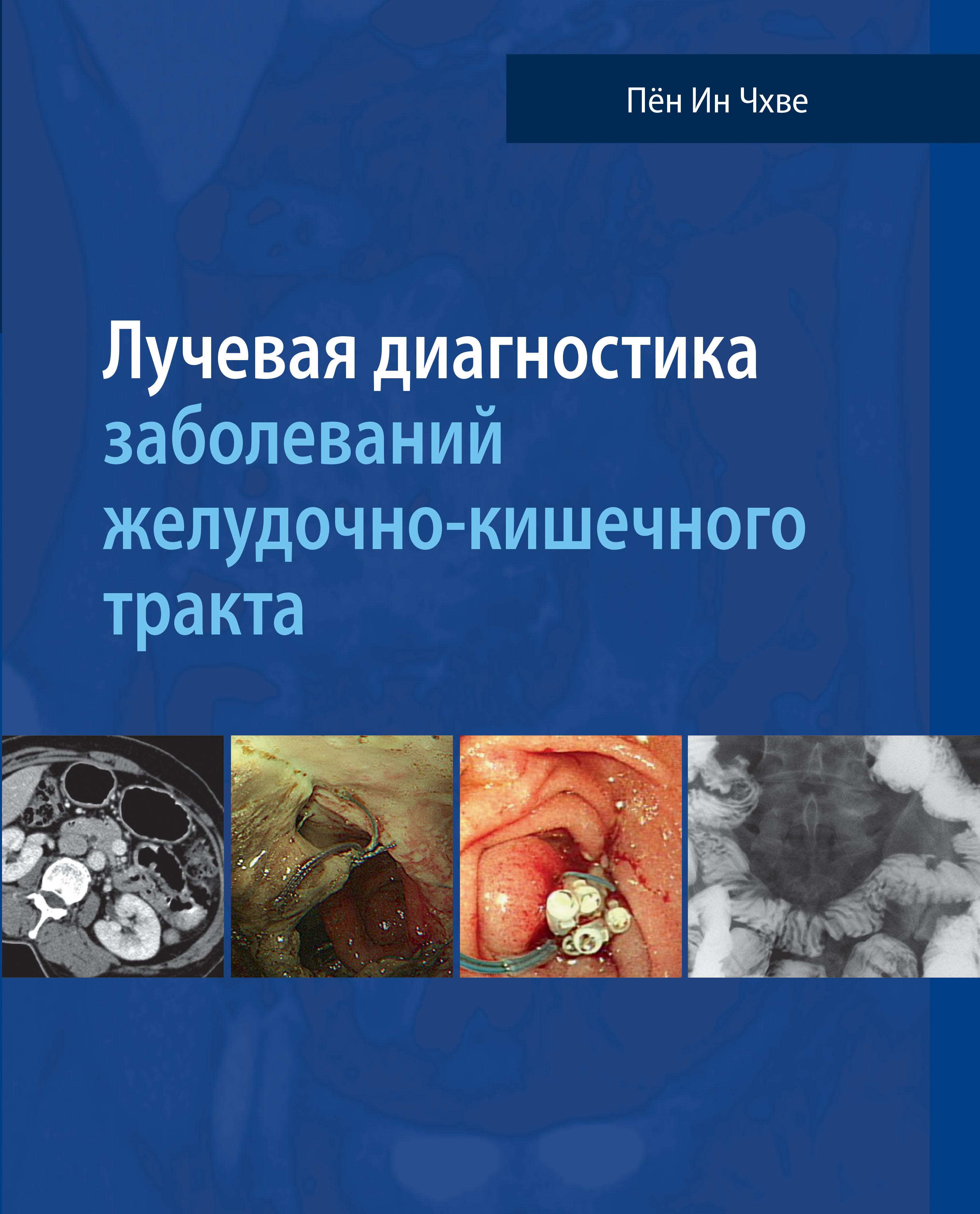 Чхве Пён Ин Лучевая диагностика заболеваний желудочно-кишечного тракта пён ин чхве лучевая диагностика заболеваний желудочно кишечного тракта isbn 978 5 91839 095 5