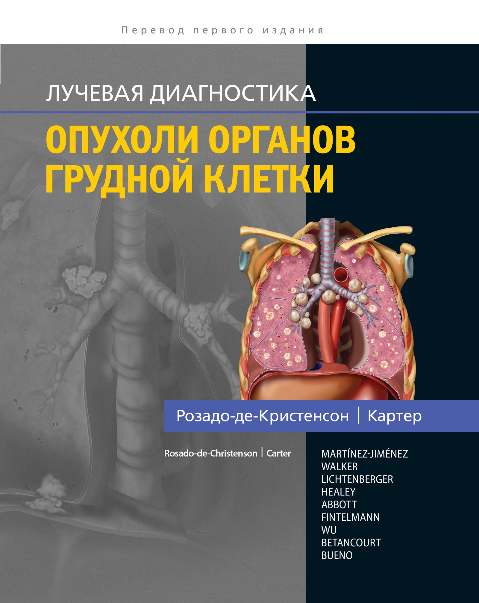 М. Л. Розадо-де-Кристенсон, Б. В. Картер Лучевая диагностика. Опухоли органов грудной клетки
