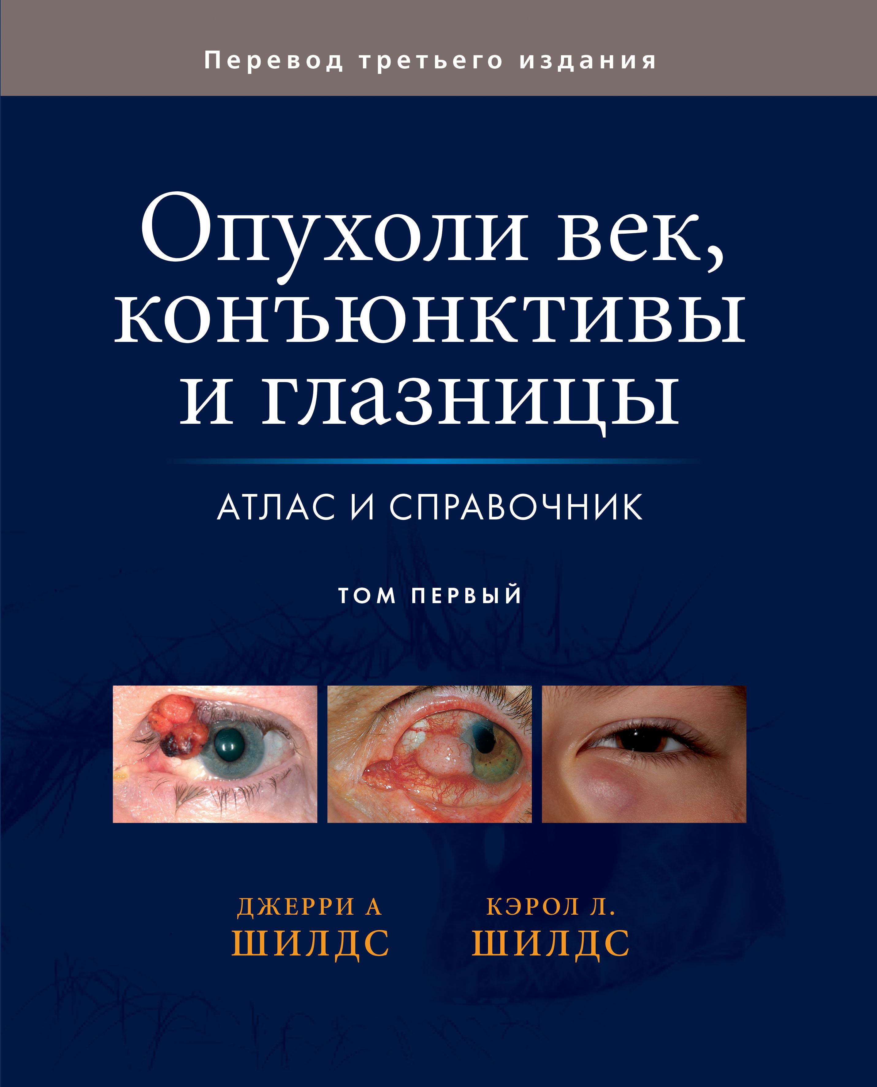 Джерри А. Шилдс, Кэрол Л. Шилдс Опухоли век, конъюнктивы и глазницы. Том 1 джерри а шилдс кэрол л шилдс опухоли век конъюнктивы и глазницы том 1