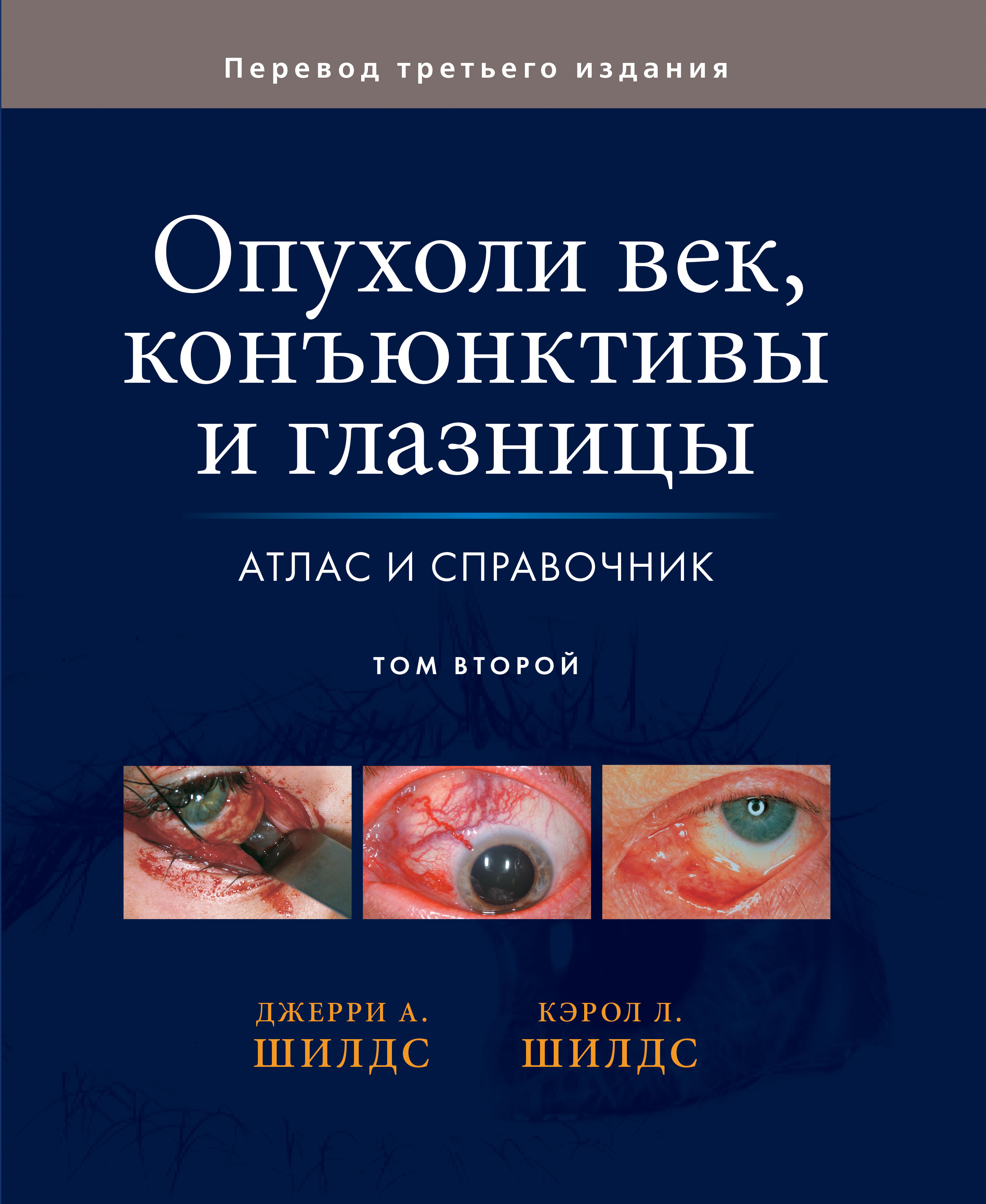 Джерри А. Шилдс, Кэрол Л. Шилдс Опухоли век, конъюнктивы и глазницы. Том 2 джерри а шилдс кэрол л шилдс опухоли век конъюнктивы и глазницы том 1