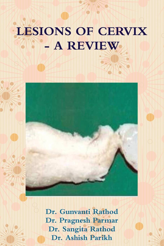 Dr Gunvanti Rathod, Dr Pragnesh Parmar Lesions of Cervix - A Review все цены