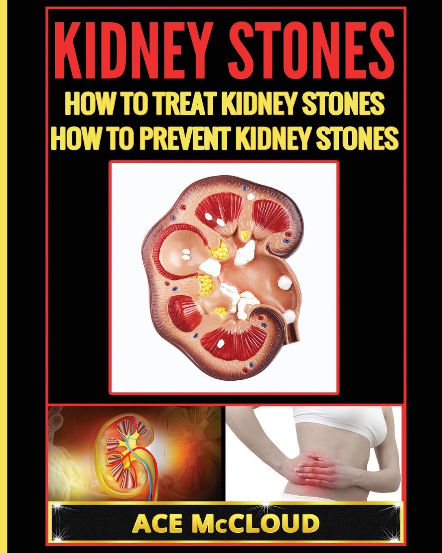 Ace McCloud Kidney Stones. How To Treat Kidney Stones: How To Prevent Kidney Stones anatomical model of kidney human kidney anatomy model