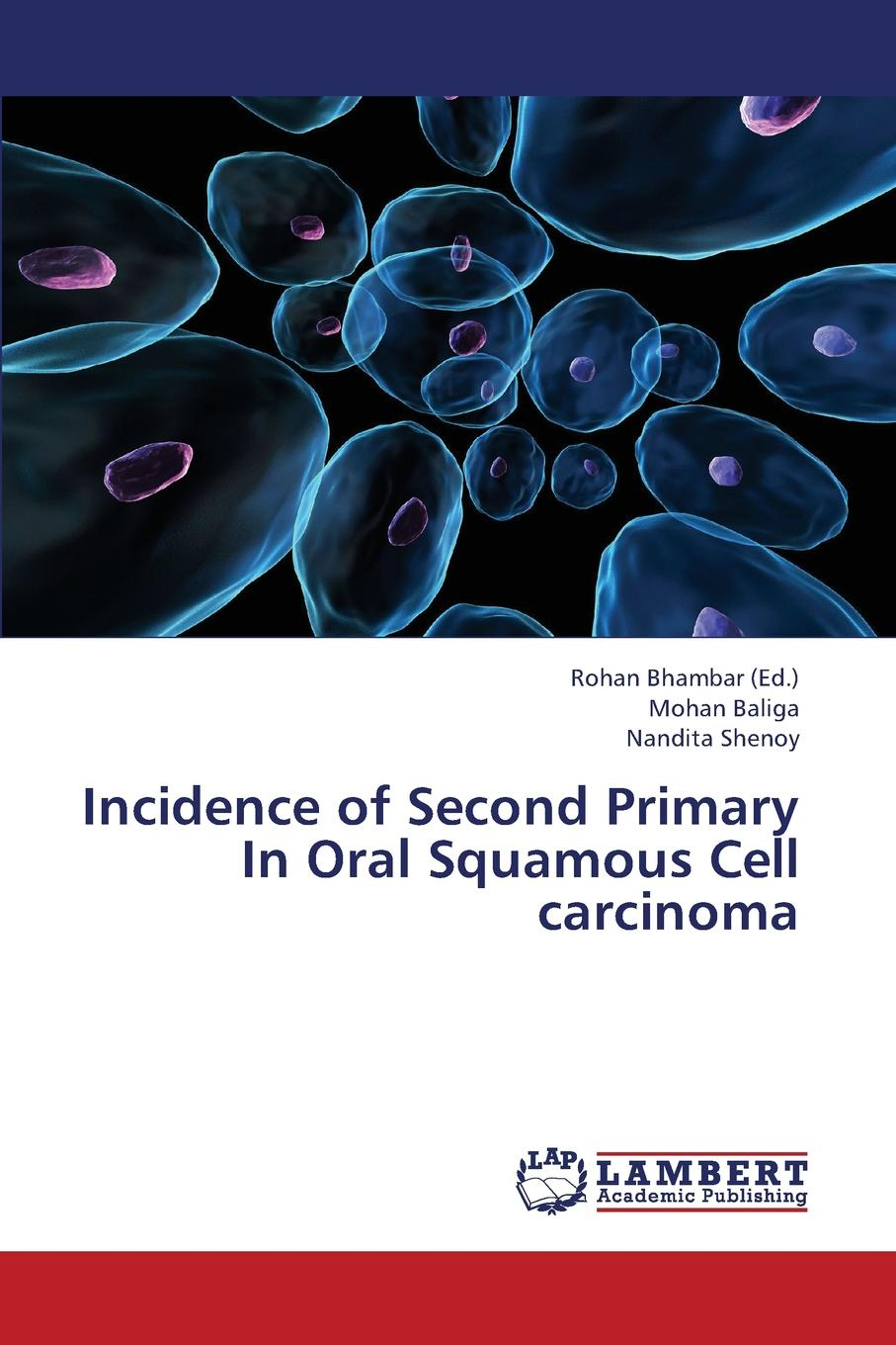 Baliga Mohan, Shenoy Nandita Incidence of Second Primary in Oral Squamous Cell Carcinoma kalyana chakravarthy pentapati shashidhar acharya and meghashyam bhat oral cancer in india