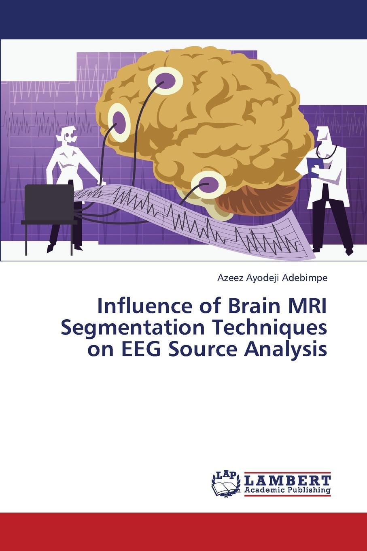 Adebimpe Azeez Ayodeji Influence of Brain MRI Segmentation Techniques on Eeg Source Analysis цена