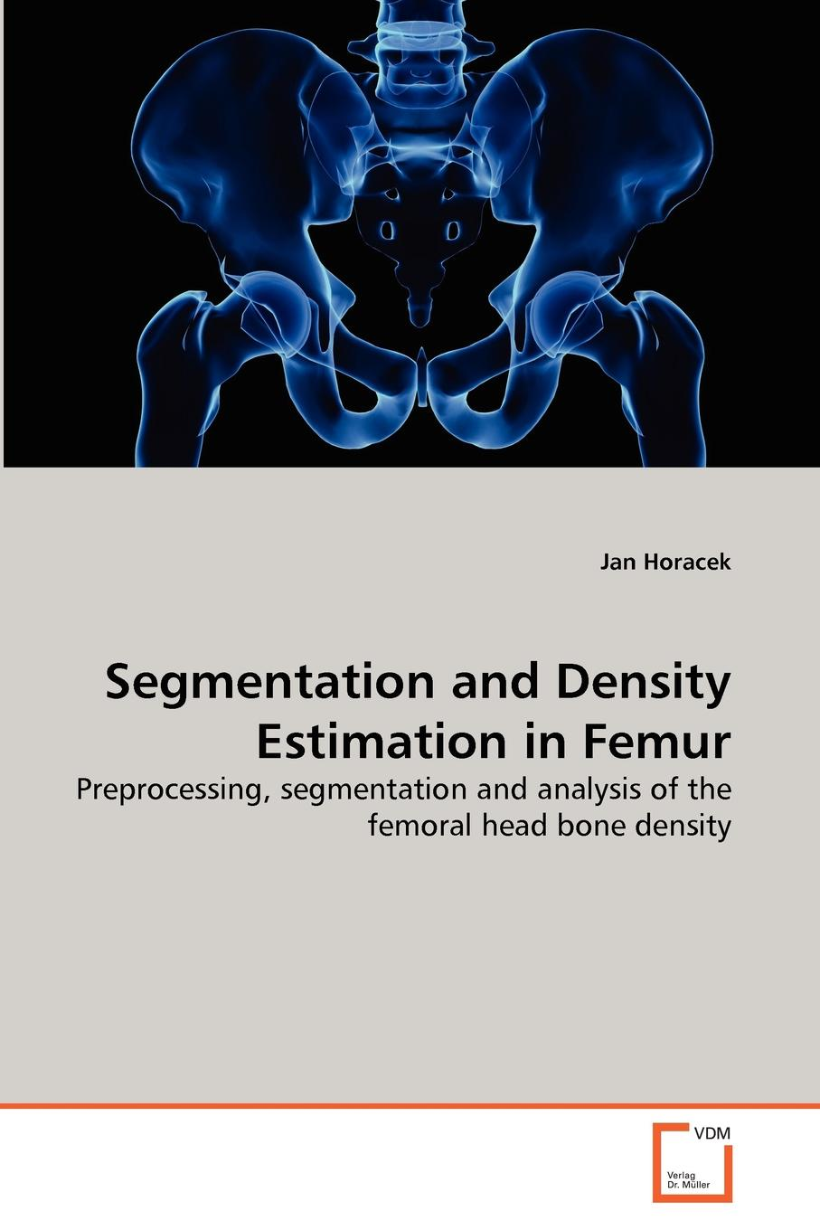 Фото - Jan Horacek Segmentation and Density Estimation in Femur agent based snort in distributed environment