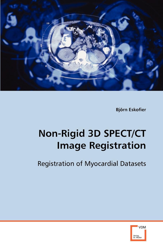 Björn Eskofier Non-Rigid 3D SPECT/CT Image Registration
