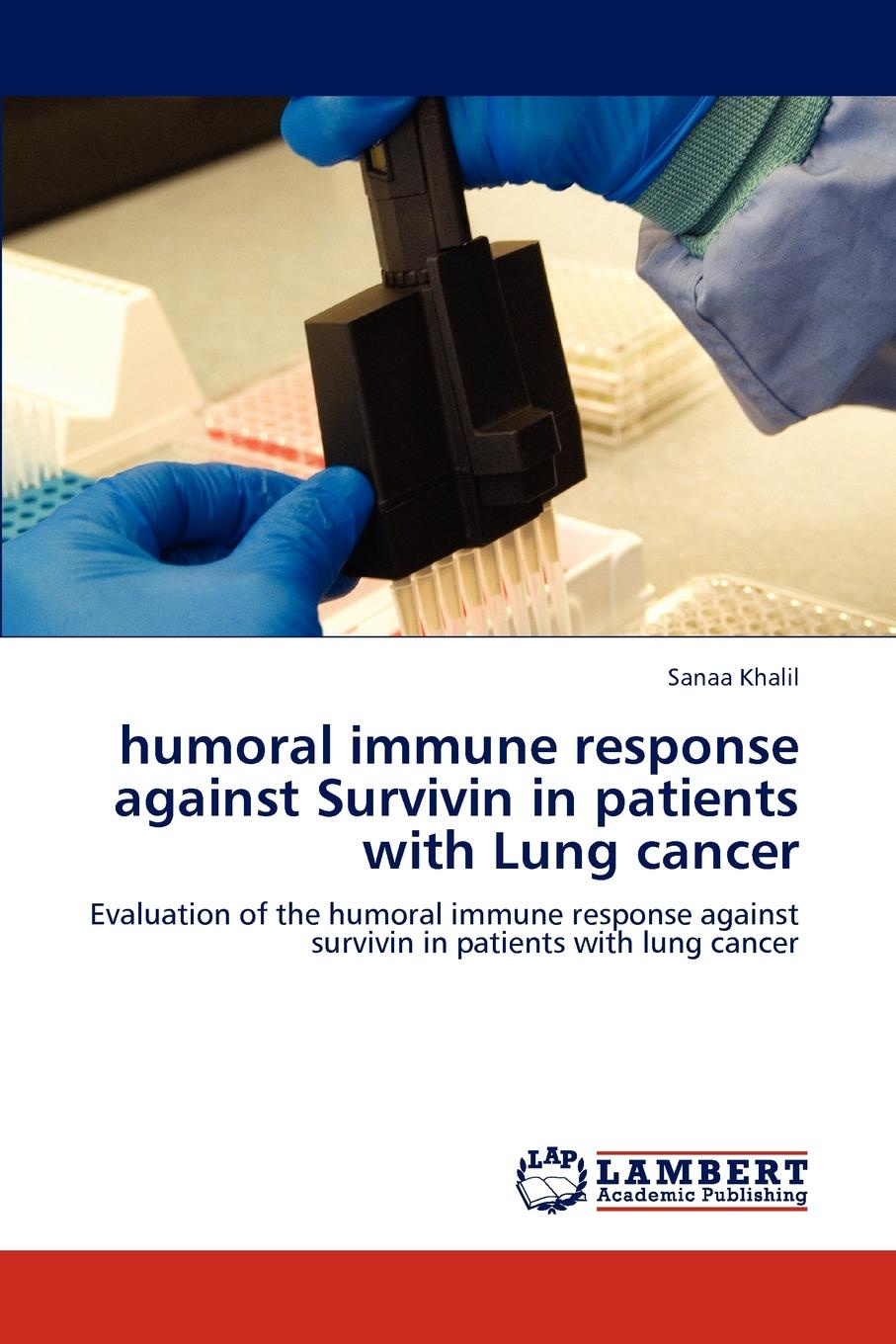 Sanaa Khalil Humoral Immune Response Against Survivin in Patients with Lung Cancer недорго, оригинальная цена