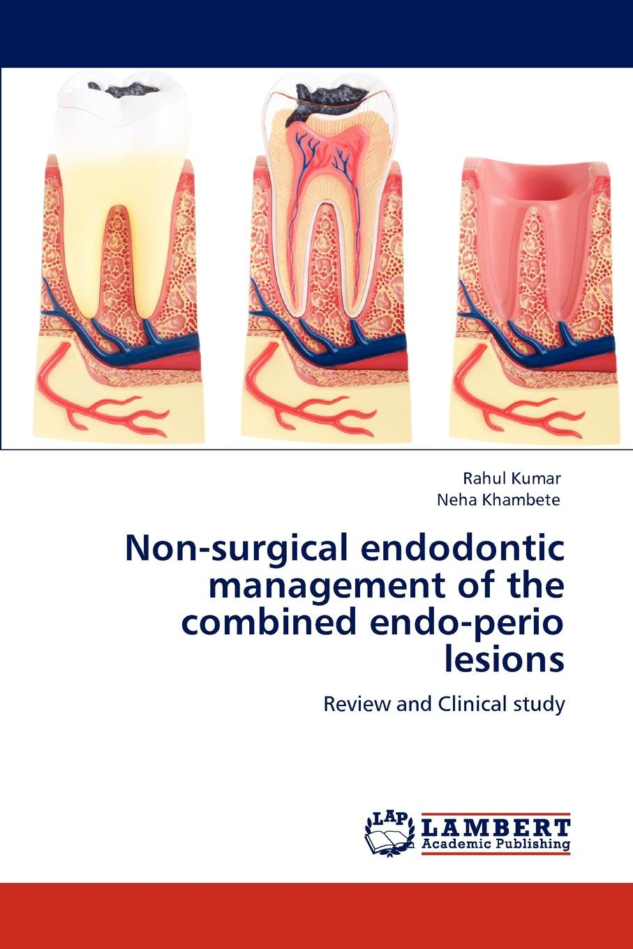 Rahul Kumar, Neha Khambete Non-surgical endodontic management of the combined endo-perio lesions the endodontic periodontal interrelationships