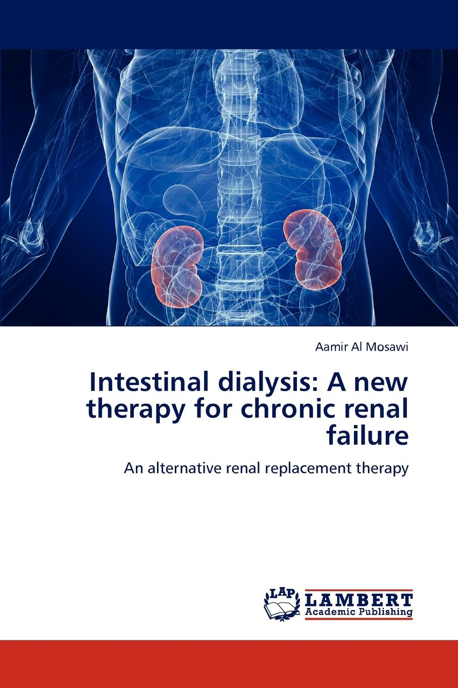 Aamir Al Mosawi Intestinal Dialysis. A New Therapy for Chronic Renal Failure malcolm kemp extreme events robust portfolio construction in the presence of fat tails isbn 9780470976791