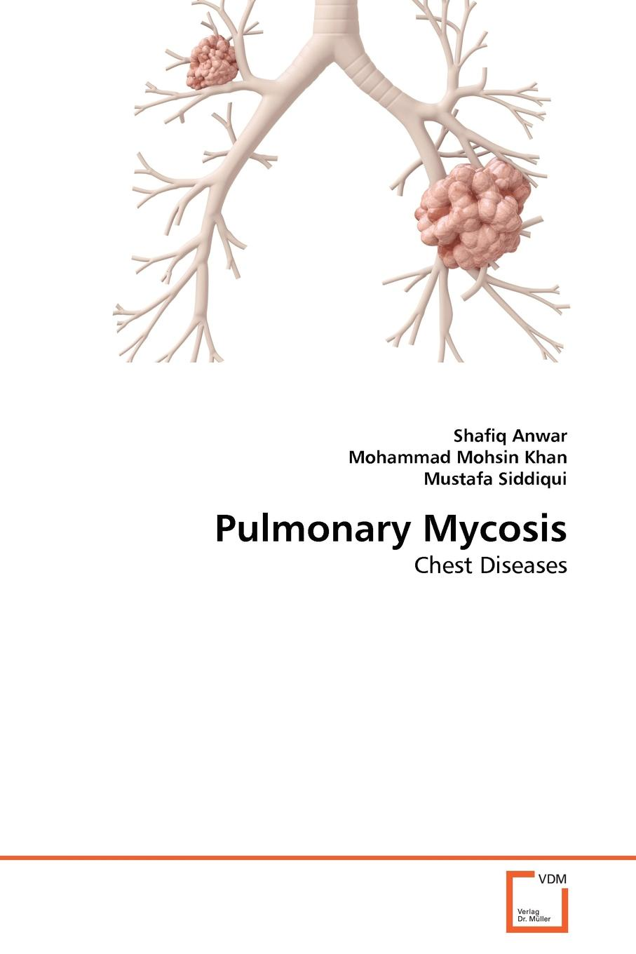 Shafiq Anwar, Mohammad Mohsin Khan, Mustafa Siddiqui Pulmonary Mycosis effect of rosemary extracts on the growth of skin infections