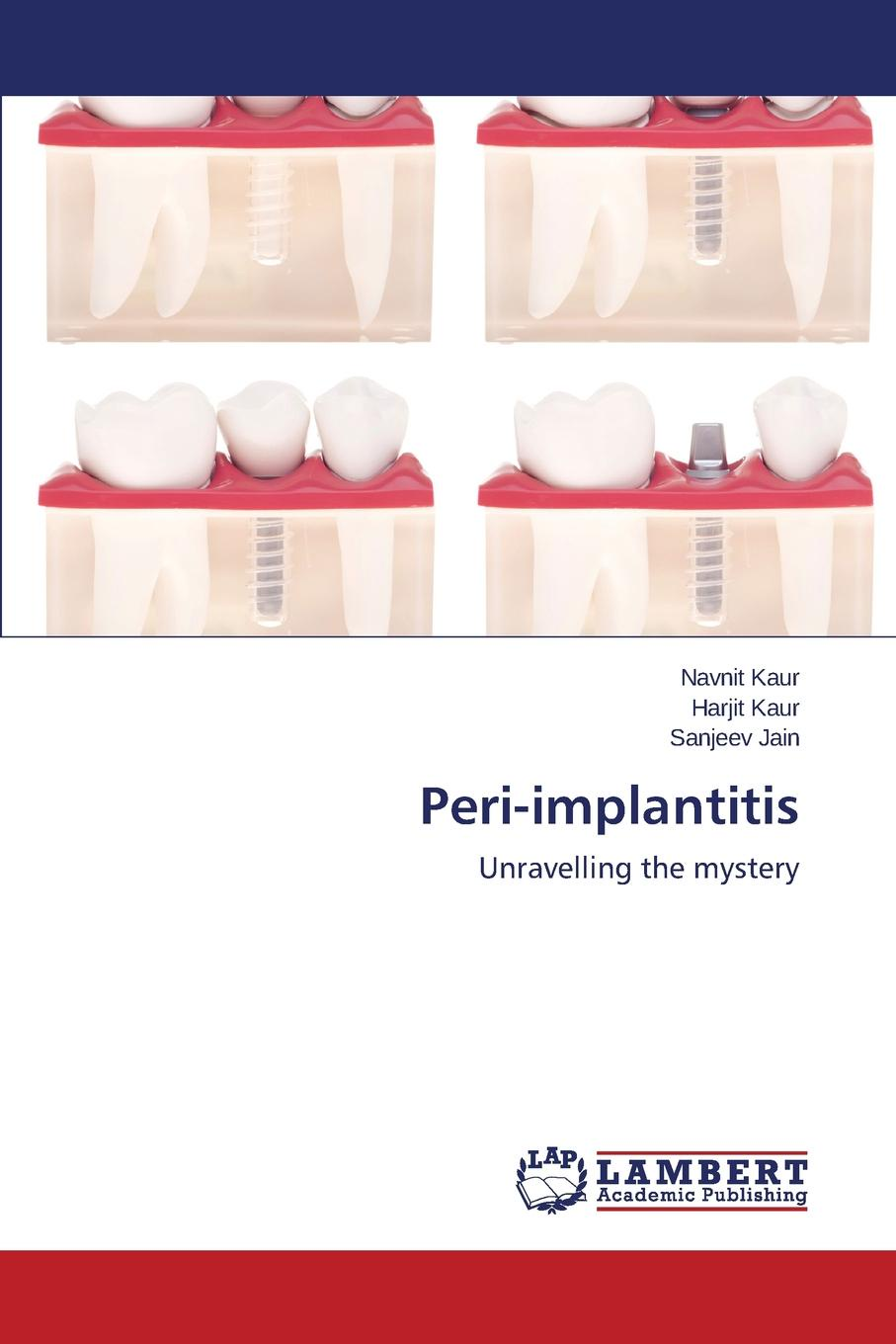 Фото - Kaur Navnit, Kaur Harjit, Jain Sanjeev Peri-implantitis susan wingrove s peri implant therapy for the dental hygienist clinical guide to maintenance and disease complications