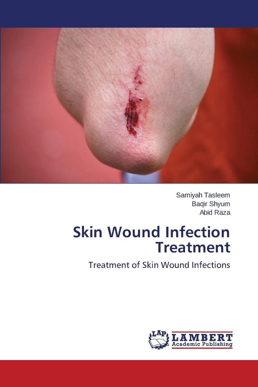 Tasleem Samiyah, Shyum Baqir, Raza Abid Skin Wound Infection Treatment недорго, оригинальная цена