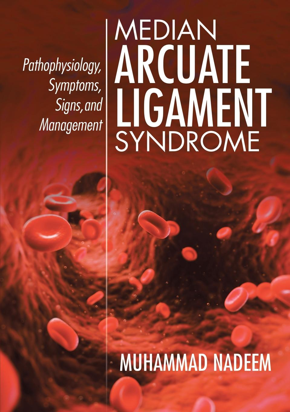 Muhammad Nadeem Median Arcuate Ligament Syndrome. Pathophysiology, Symptoms, Signs, and Management