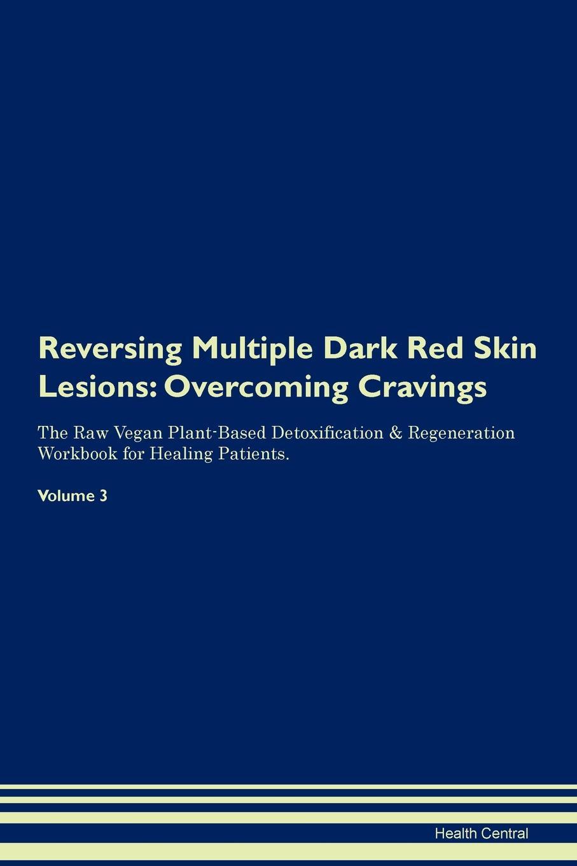 Health Central Reversing Multiple Dark Red Skin Lesions. Overcoming Cravings The Raw Vegan Plant-Based Detoxification . Regeneration Workbook for Healing Patients. Volume 3