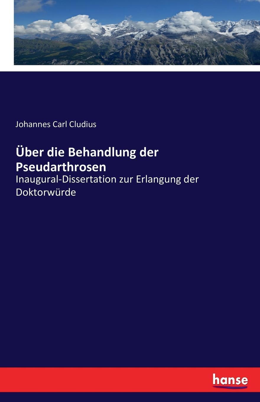 Johannes Carl Cludius Uber die Behandlung der Pseudarthrosen johannes wolffheim der einfluss des zeithandels auf die preisgestaltung des berliner aktienmarktes inaugural dissertation classic reprint
