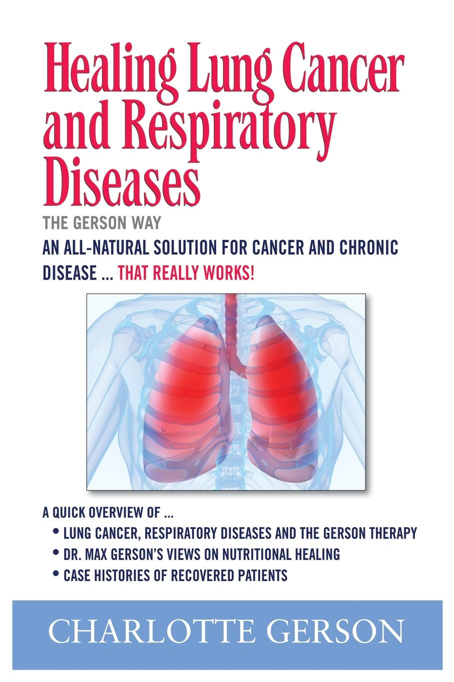 Charlotte Gerson Healing Lung Cancer and Respiratory Diseases. The Gerson Way alison leary lung cancer a multidisciplinary approach