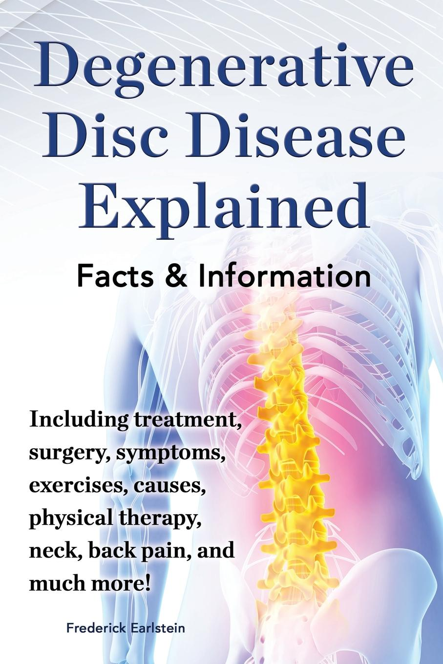 Frederick Earlstein Degenerative Disc Disease Explained. Including Treatment, Surgery, Symptoms, Exercises, Causes, Physical Therapy, Neck, Back, Pain, and Much More! Fac back massage stretcher stretching magic lumbar support waist neck relax mate device spine pain relief chiropractic health care