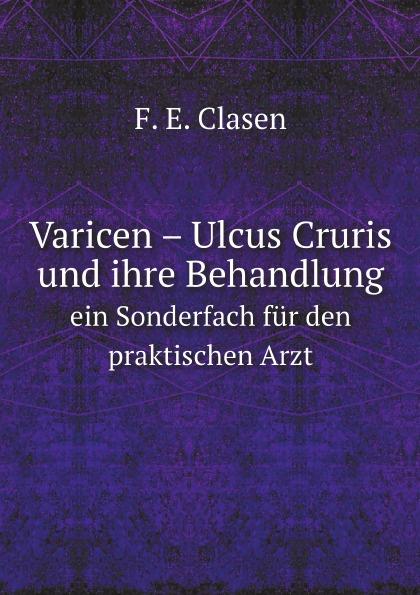 F.E. Clasen Varicen . Ulcus Cruris und ihre Behandlung. ein Sonderfach fur den praktischen Arzt turquan joseph l imperatrice josephine