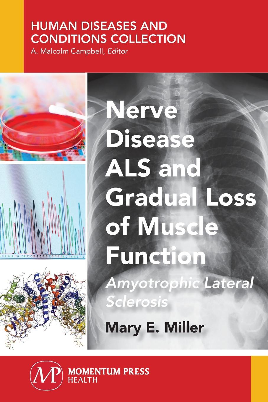 Mary E. Miller Nerve Disease ALS and Gradual Loss of Muscle Function. Amyotrophic Lateral Sclerosis epidemiology of lower limb fractures and ambulatory rehabilitation