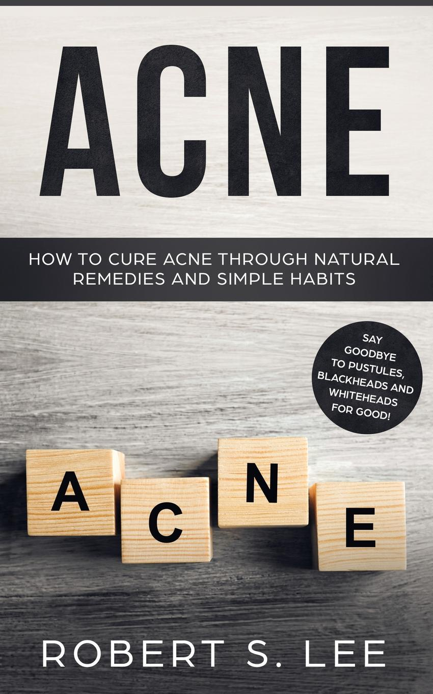 Acne. How to Cure Acne through Natural Remedies and Simple Habits. Say Goodbye to Pustules, Blackheads and Whiteheads for Good!