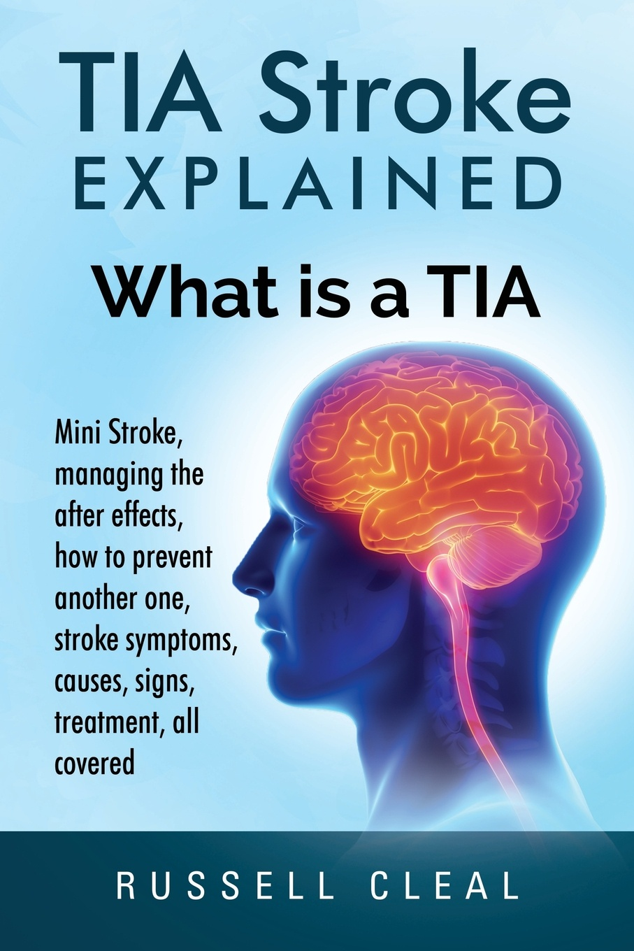 Russell Cleal Tia Stroke Explained. What is a Tia, Mini Stroke, managing the after effects, how to prevent another one, stroke symptoms, causes, signs, treatment, all covered gait and balance performance in stroke survivors