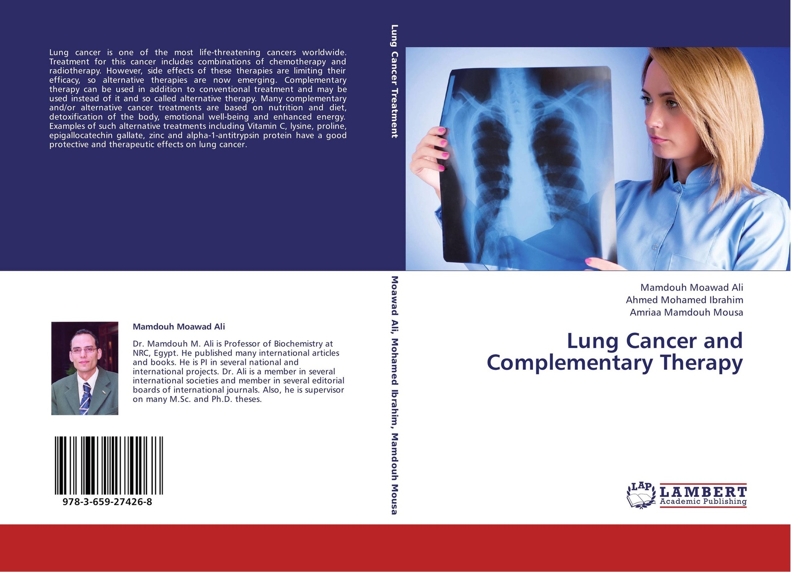 Mamdouh Moawad Ali,Ahmed Mohamed Ibrahim and Amriaa Mamdouh Mousa Lung Cancer and Complementary Therapy characterization of microparticles for lung cancer delivery