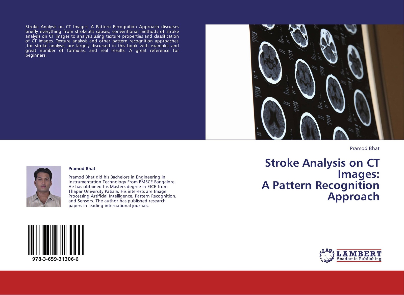 Pramod Bhat Stroke Analysis on CT Images: A Pattern Recognition Approach funi ct 6657 cute cartoon face pattern round magnet stickers yellow deep pink 10 pcs