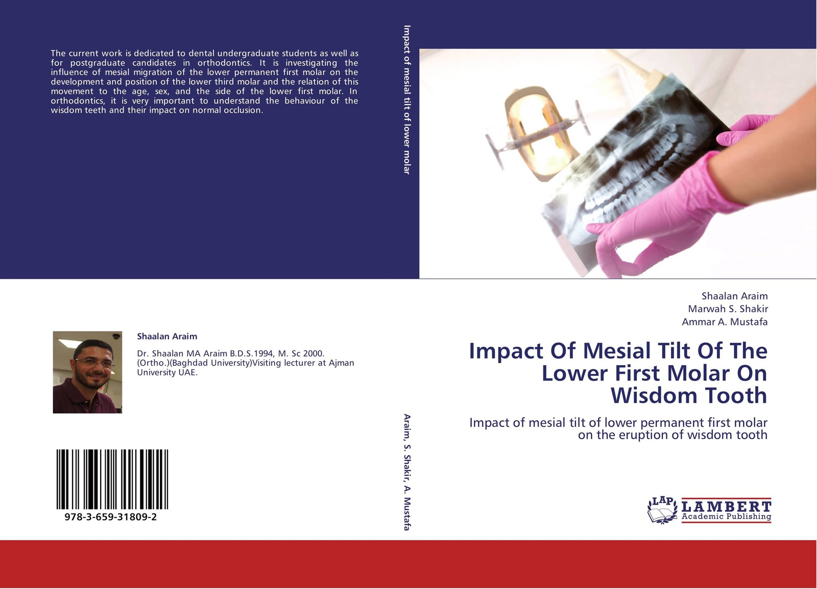 Shaalan Araim,Marwah S. Shakir and Ammar A. Mustafa Impact Of Mesial Tilt Of The Lower First Molar On Wisdom Tooth