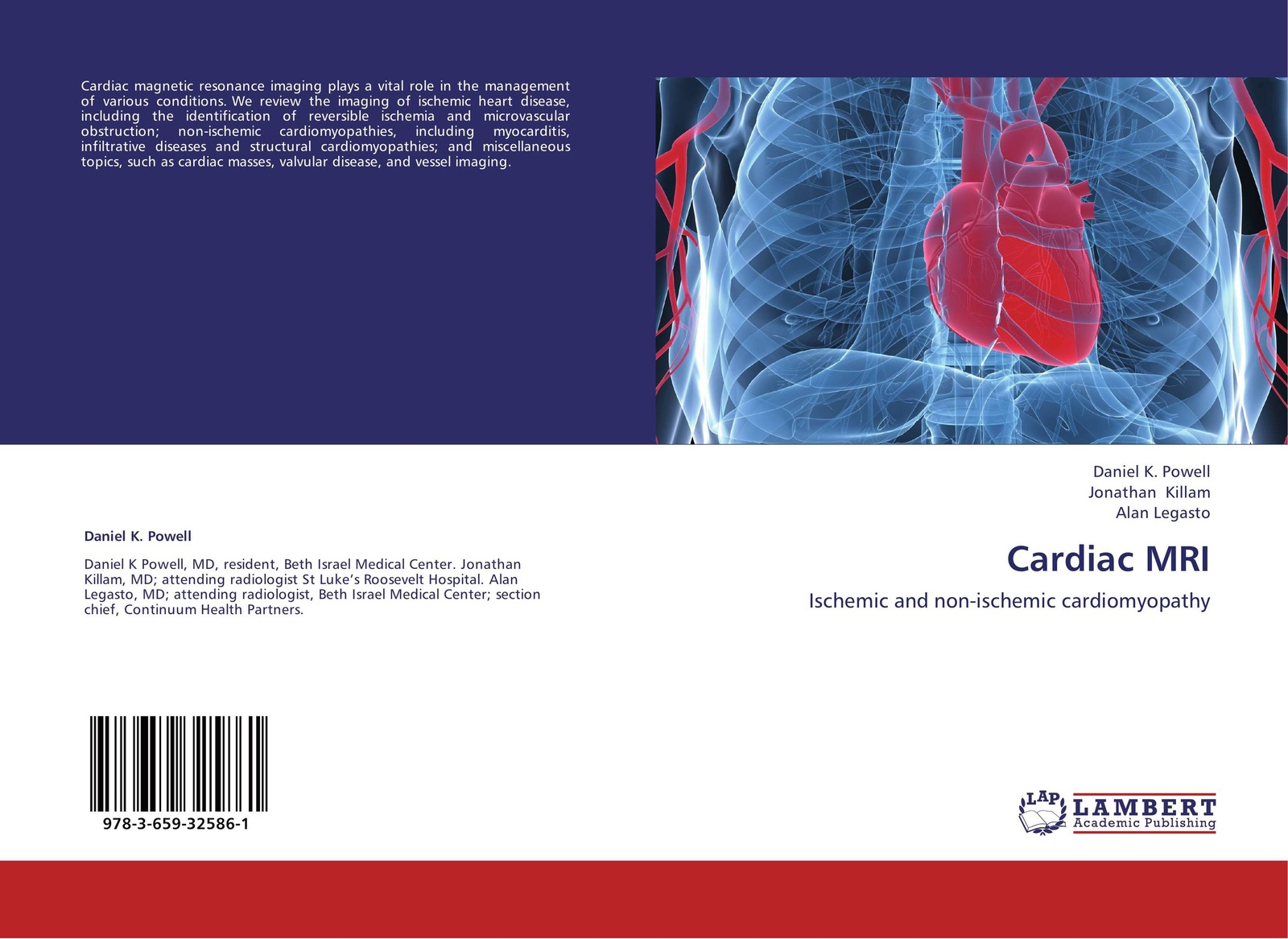 interconnected intrinsic cardiac ganglia - HD 1600×1167