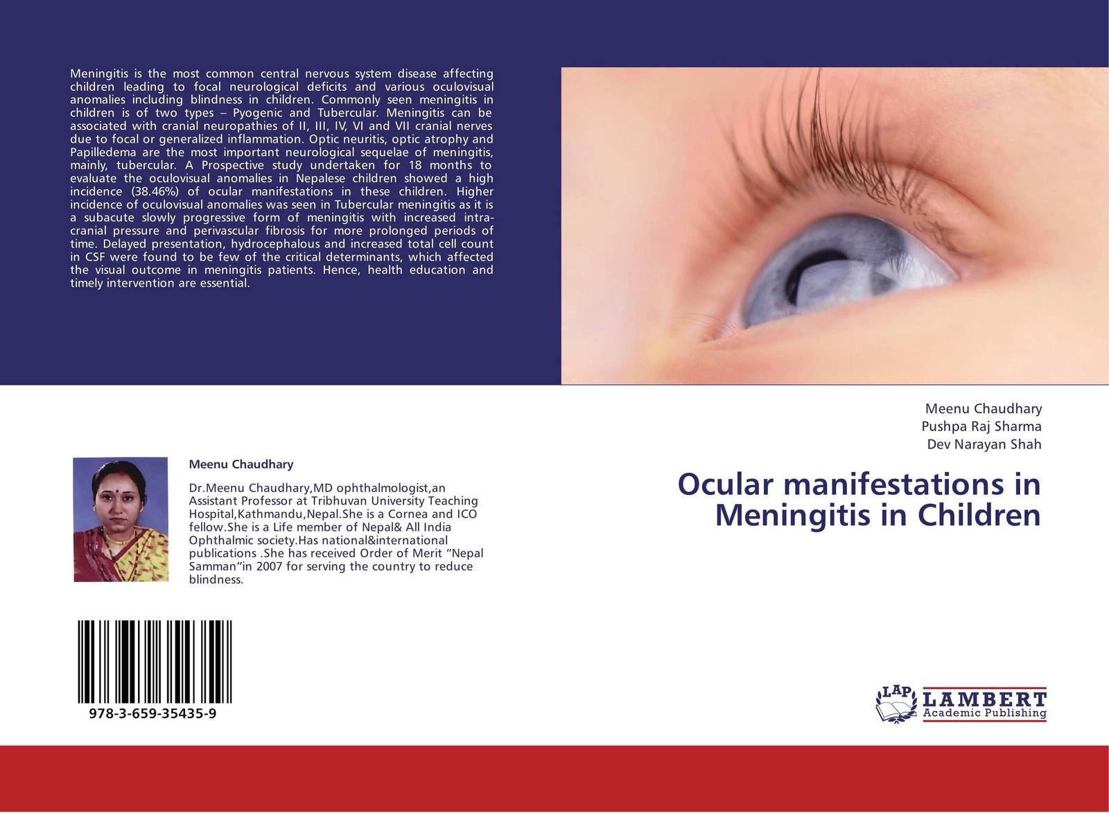 Фото - Meenu Chaudhary,Pushpa Raj Sharma and Dev Narayan Shah Ocular manifestations in Meningitis in Children anatomy and functions of cranial nerves
