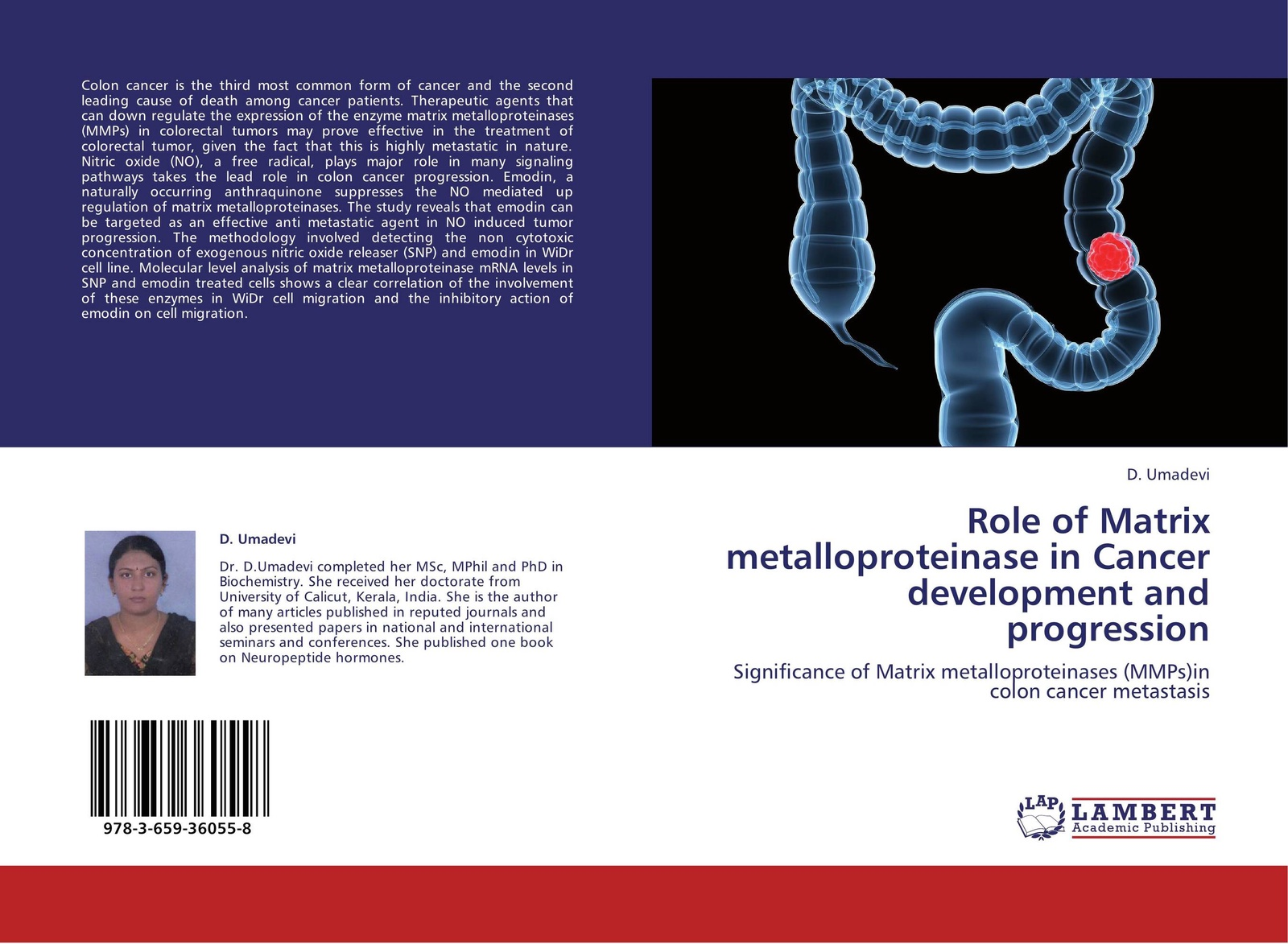D. Umadevi Role of Matrix metalloproteinase in Cancer development and progression irit sagi matrix metalloproteinase biology