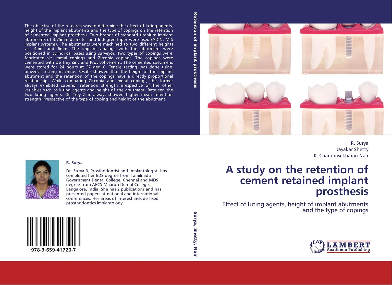 R. Surya,Jayakar Shetty and K. Chandrasekharan Nair A study on the retention of cement retained implant prosthesis