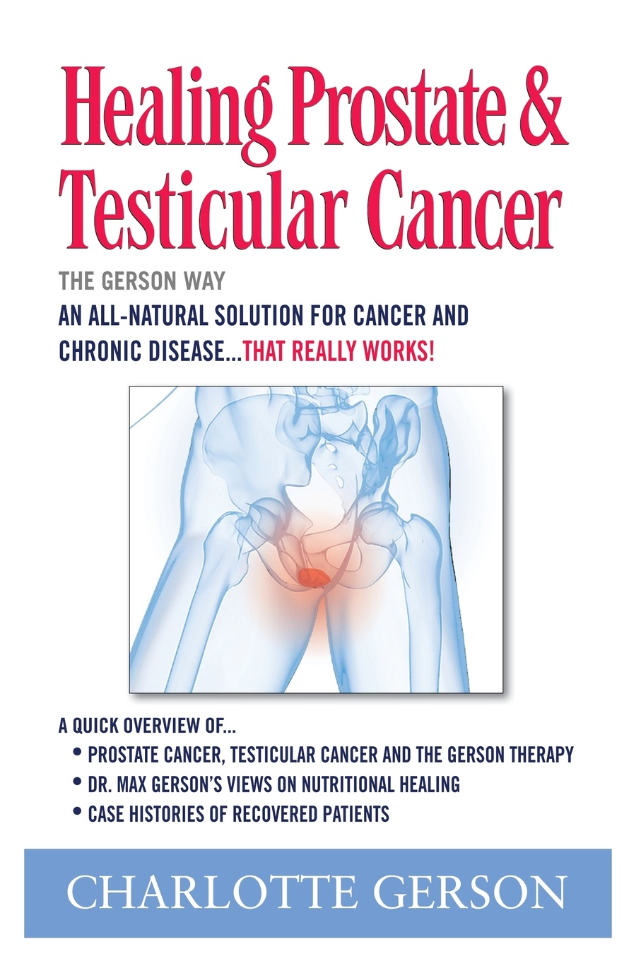 Charlotte Gerson Healing Prostate & Testicular Cancer. The Way
