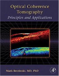 Обложка книги Optical Coherence Tomography: Principles and Applications