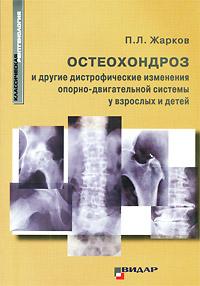 Остеохондроз и другие дистрофические изменения опорно-двигательной системы у взрослых и детей